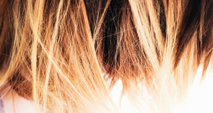 Natural-Hair-Loss-Treatment